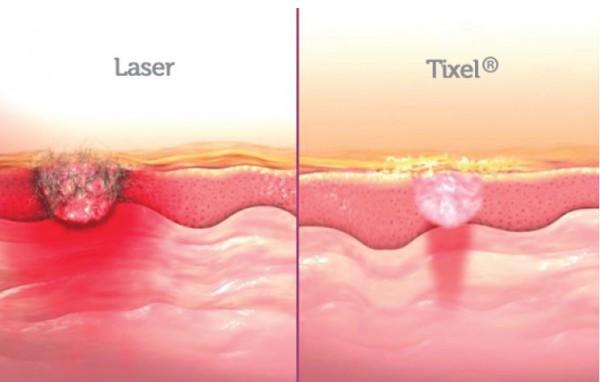 Micropore Tixel vs laser