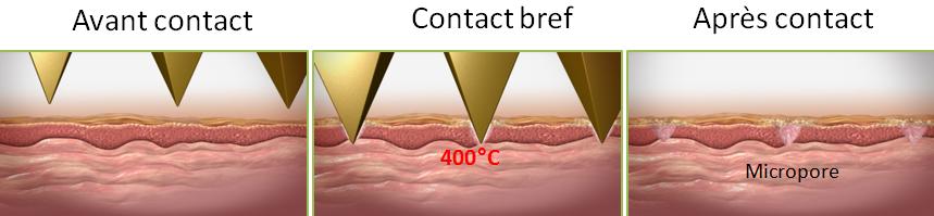 Contact Tixel avec peau