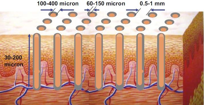 Microzones Tixel